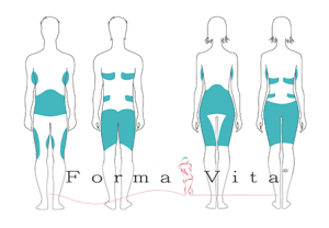 body_aesthetic_formavita_kryolipolyse_zonen