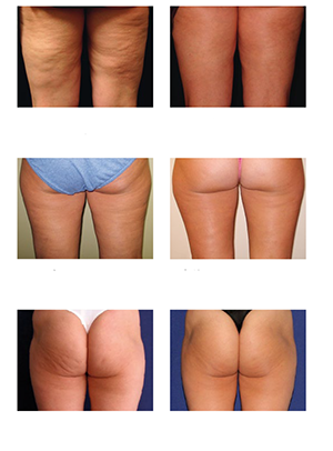 Cellulite & Stosswellentherapie